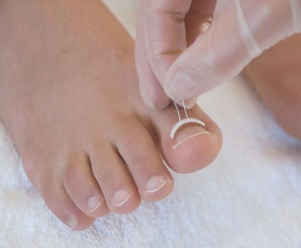 Вросший ноготь на большом пальце ноги: причины и лечение…